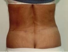 Body Contouring after 611086
