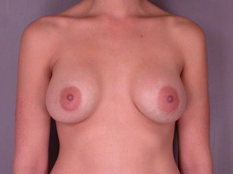 Breast Augmentation before 307436