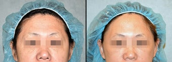 Endoscopic Brow/Forehead Lift before 649370