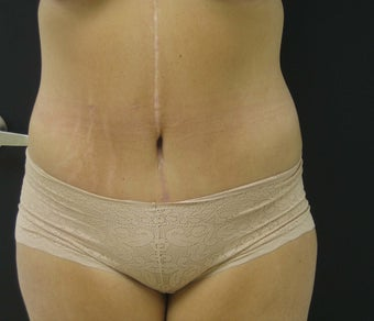 Tummy Tuck After Gastric Bypass after 523251
