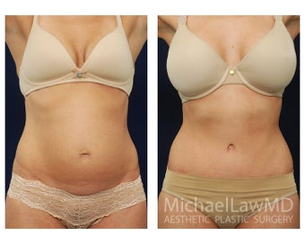 Abdominoplasty - Tummy Tuck before 396021