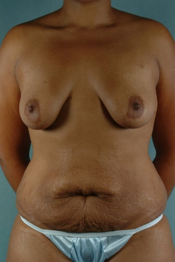 Breast Augmentation with Lift & Tummy Tuck with Liposuction