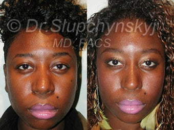 African American Rhinoplasty after 374061
