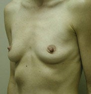 Breast Augmentation before 139555
