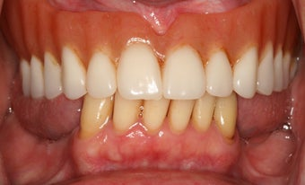 Dental implants, implant overdenture 569224