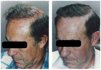 hair transplant before 369166