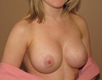 Breast augmentation after 600150