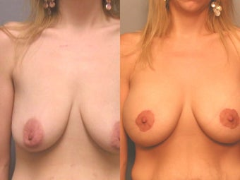 Breast Augmentation Special Situations before 131219