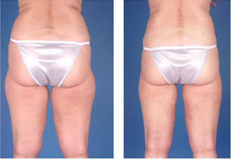 Liposuction with ultrasound of hips and thighs, age 55 after 6785