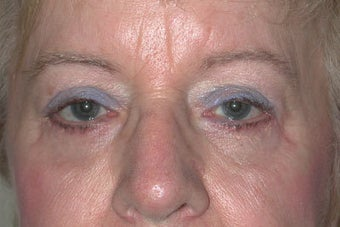 Upper and lower Blepharoplasty after 410972