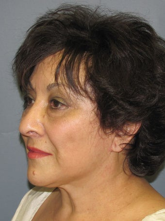Neck Lift, Platysmaplasty 634736
