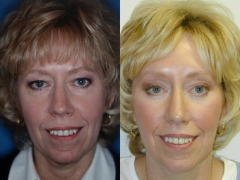 Endoscopic Brow Lift, Upper and Lower Blepharoplasty before 139171