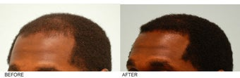 Hair Transplant after 137283