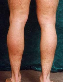 Men's Calf Augmentation  before 519054