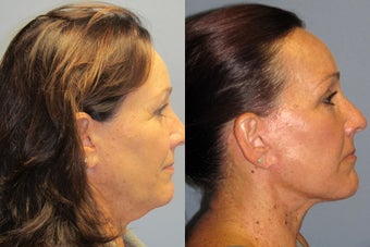 Lite Lift, Liposuction of the  neck after 523449