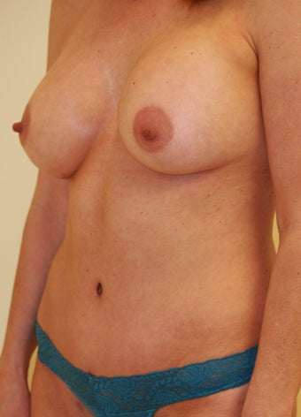 Abdominoplasty (Tummy Tuck) and Breast Augmentation and Liposuction