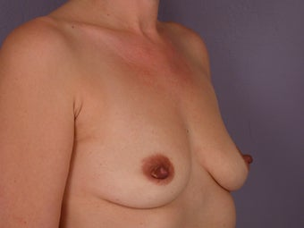Breast Implants before 304989