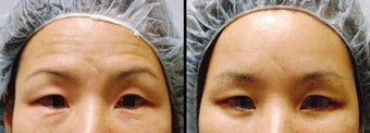 Endoscopic Brow Lift before 649408