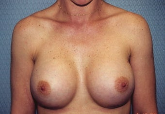 Breast Augmentation after 266792
