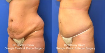 Mini Tummy Tuck after 568404