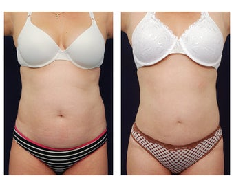 Liposuction before 397002