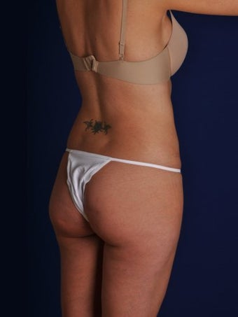 Vaser Hi-Def Liposuction of the back, flanks, medial and lateral thighs 422717