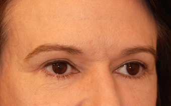 Eyelid Surgery / Fat Grafting after 347487