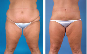 Central body lift with liposuction age 32 before 6814