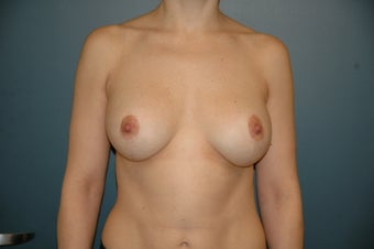 Breast lift with augmentation after 165876