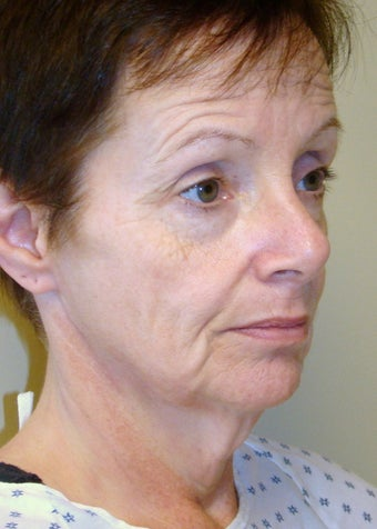 Mini Facelift and Necklift before 104098