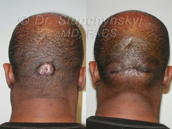 Keloid Removal before 563859