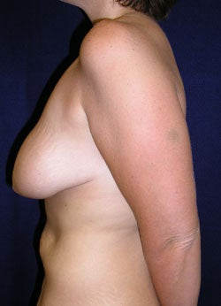 Breast Lift -without implants 540739