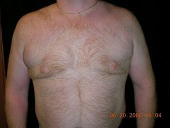 Cool Lipo after 245621