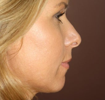 Neck Lift and Upper Eyelid Blepharoplasty after 406795