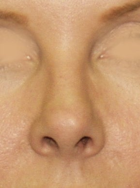 Revision Rhinoplasty before 410624