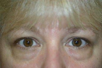 Lower Blepharoplasty before 551146