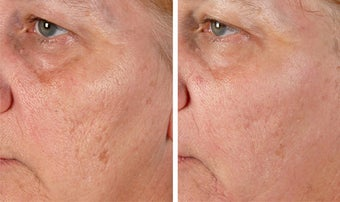 Active FX Fractional Laser Resurfacing before 254011
