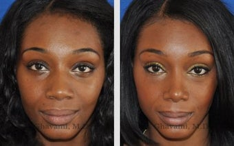 African American Ethnic Rhinoplasty before 487997