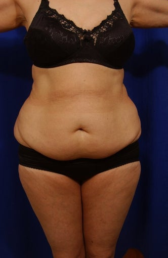 Abdominoplasty with liposculpture of abs, flanks before 82411