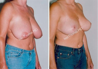 Breast Reduction before 243749