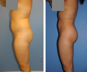 Liposuction before 636194