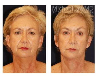 Facial Rejuvenation before 395177