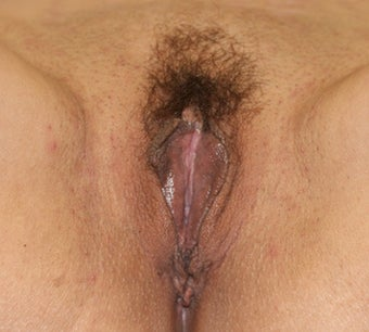 Vaginoplasty before 260988