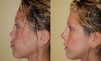 Revision Rhinoplasty Nose Surgery before 368726