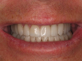Full Mouth Makeover after 364702