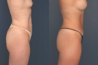 Full Tummy Tuck 369651