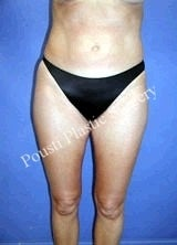 Liposuction before 634646