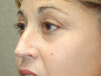 Bilateral Upper Blepharoplasty with Mid-Face Lift after 425046