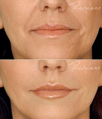 Restylane Lips Wrinkles Before After before 6284