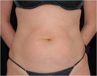 SlimLipo Abdomen Showing Skin Tightening before 97356